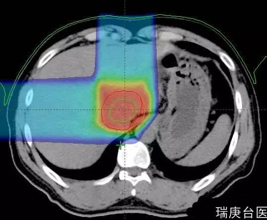 臺灣長庚肝癌案例 | 質子治療后 1 年復查,腫瘤完全消失