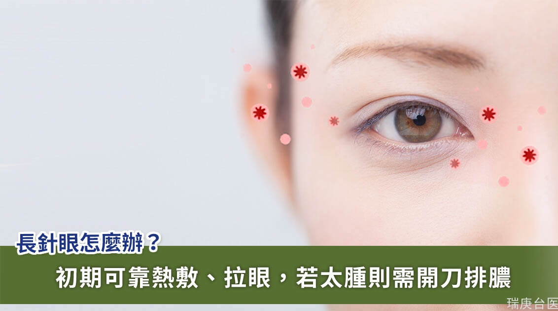 長針眼該怎么辦?眼科醫師揭 3 招緩解不適